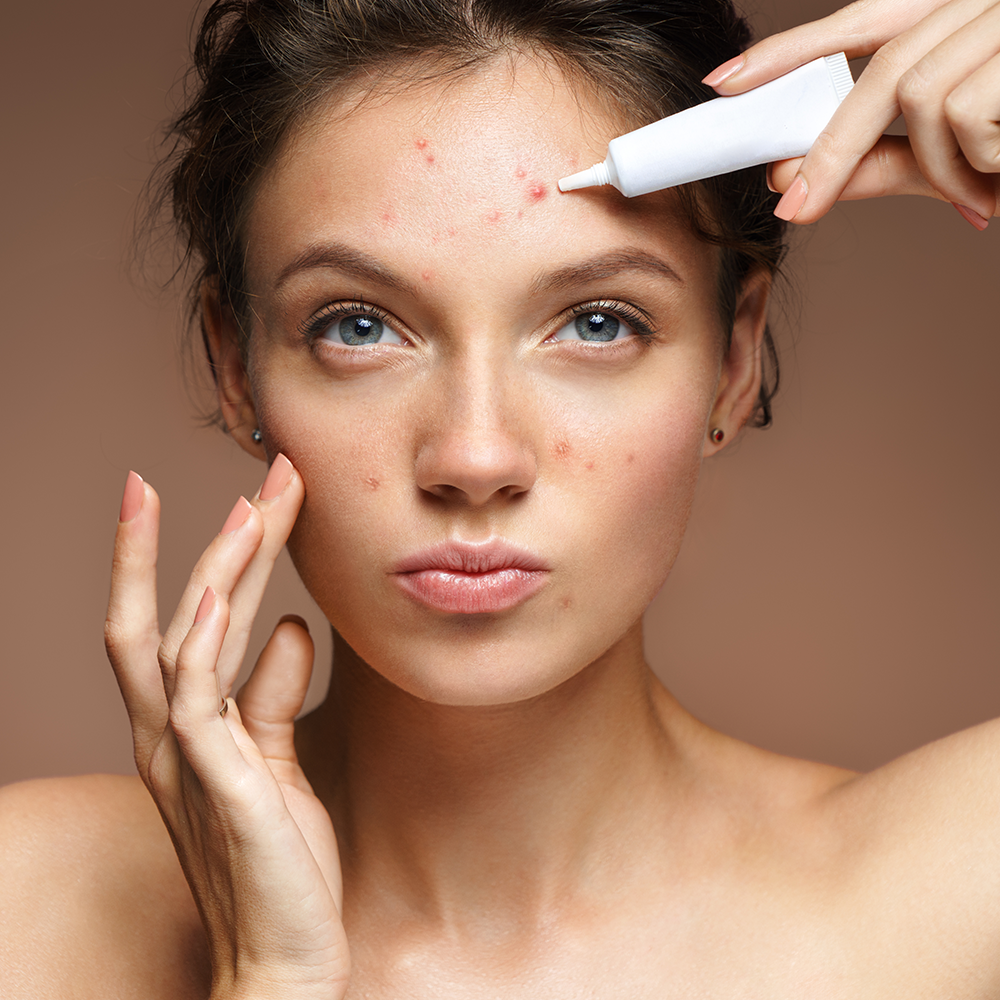Top Acne Treatments to Get Your Skin Glowing - Thumbnail